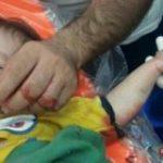 چرخ گوشت انگشتان کودک یک ساله خورزوقی را قطع کرد!